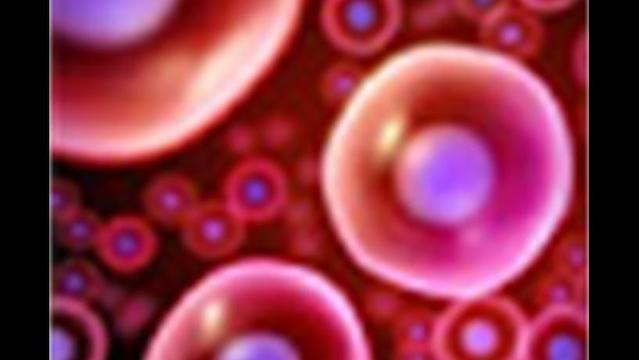 Experimental Stem Cell Treatment Tested for Type 1 Diabetes